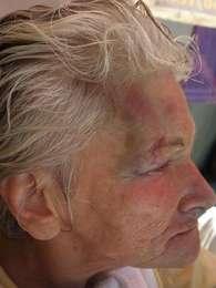 A avó de Isadora levou uma pedrada em novembro do ano passado Foto: Divulgação