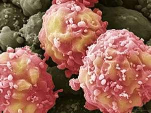 Células tronco são usadas no tratamento de AVC (acidente vascular cerebral) Foto: BBCBrasil.com