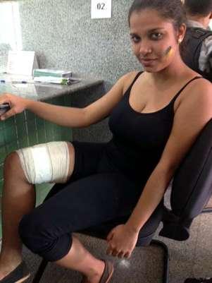 Larissa Souza foi baleada na perna com um projétil de borracha durante as manifestações Foto: Diogo Alcântara / Terra