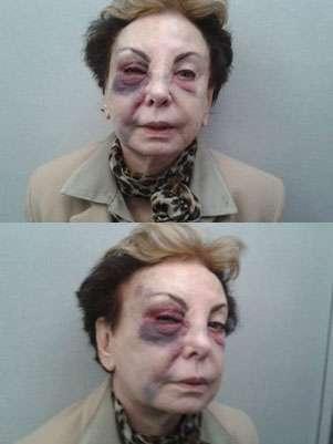 A atriz Beatriz Segall se machucou em um buraco de calçada no Rio de Janeiro Foto: Arquivo Pessoal / Reprodução