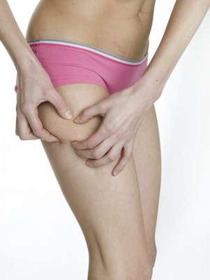 Celulite pode ser causada por trauma na infância; entenda