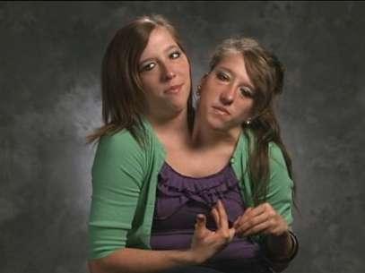 Quando não é possível fazer a cirurgia de separação, os siameses precisam aprender a viver unidos Foto: Abby and Brittany: Joined for Life / Reprodução
