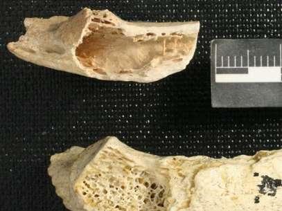 Comparação entre o osso anormal de um neandertal (acima) e o de uma amostra normal (abaixo) Foto:  PLOS One / Divulgação