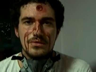 Repórter gravou vídeo ensanguentado após ser atingido durante confrontos nos protestos no Rio de Janeiro Foto: GloboNews / Reprodução/GloboNews