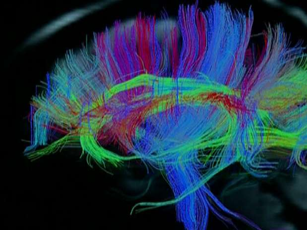 http://p2.trrsf.com.br/image/fget/cf/67/51/images.terra.com/2013/02/18/estudo-exame-cerebro-bbc.jpg