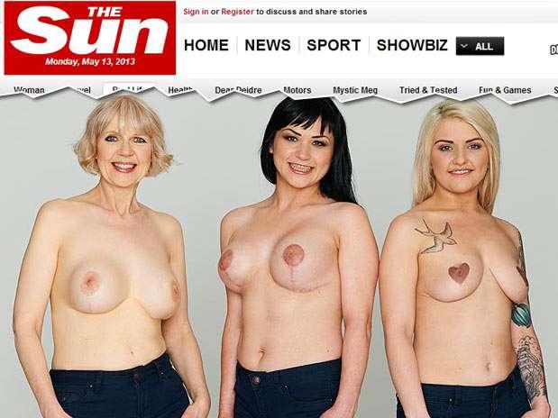 Mulheres tatuam mamilo para melhorar autoestima Foto: Reprodução/The Sun
