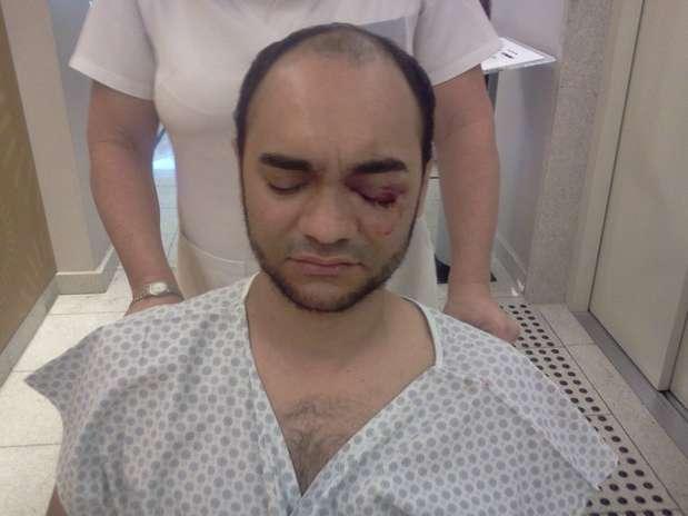 O fotógrafo Sérgio Silva, da Futura Press, sofreu lesões no olho e uma fratura na órbita Foto: Arquivo Pessoal / Divulgação