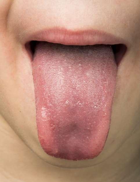 No exame clínico da língua, a alteração na cor pode indicar, por exemplo, uma anemia, se estiver muito esbranquiçada Foto: Shutterstock