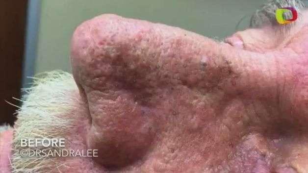 Assista aos vídeos mais pesados da dermatologista Sandra Lee