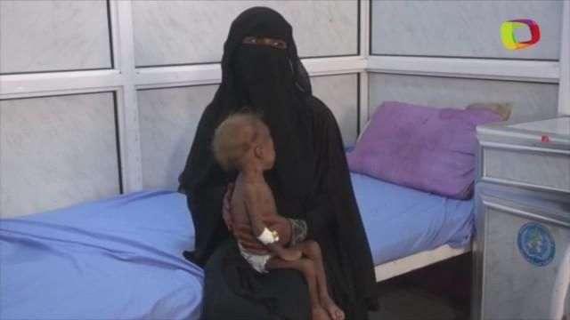 ONU: Iêmen corre risco de viver crise de fome por conflito