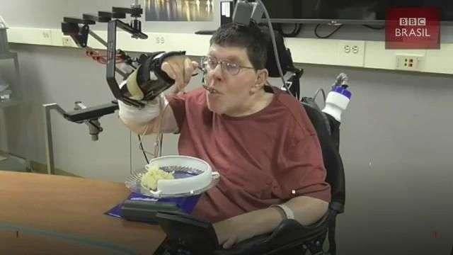 Implantes que fazem 'ponte' entre cérebro e músculo devolvem movimento a homem paralisado