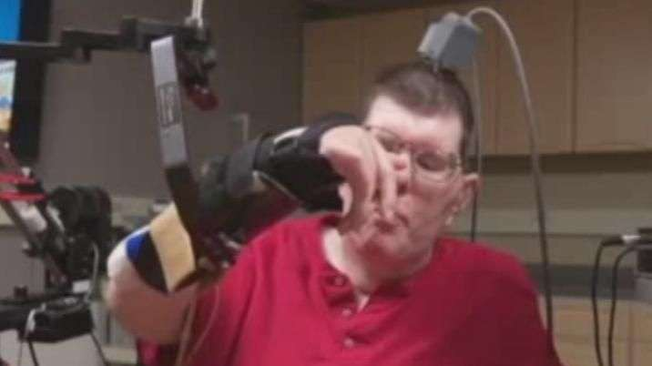 Tetraplégico se alimenta sozinho após implante robótico