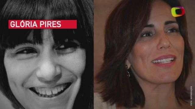 Que diferença! Veja antes e depois dos sorrisos de famosos