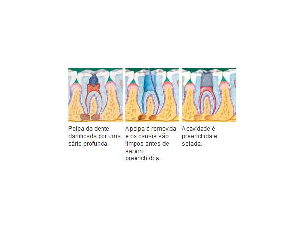 O que é tratamento de canal?