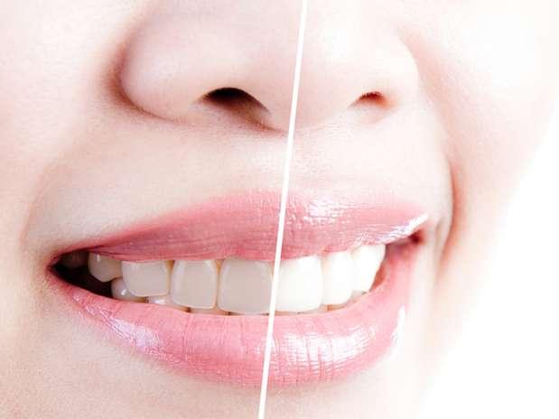 Cinco tratamentos deixam o sorriso perfeito