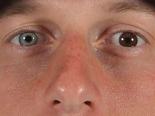 Max Scherzer, jogador norte-americano de basebol, tem uma grande diferença nas cores dos olhos Foto: Getty Images
