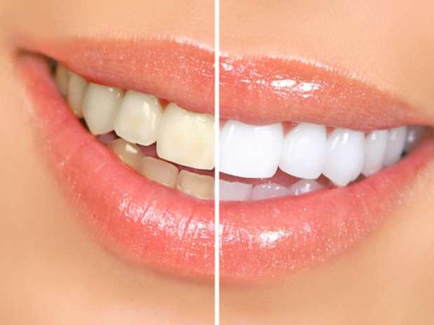 Alguns alimentos são inimigos dos tão desejados dentes branquinhos; saiba quais são Foto: Shutterstock