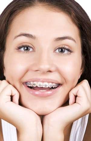 Cada vez mais, os aparelhos ortodônticos se espalham pelos sorrisos, não só de crianças, como de adultos. Além de corrigir o alinhamento dos dentes, o tratamento previne uma série de problemas relacionados com articulação dental incorreta. Mas, para ter apenas resultados positivos, é preciso ter atenção redobrada com a higiene bucal. Isso porque a escova e o fio dental encontrarão mais obstáculos na boca, como braquetes, fios e bandas.  Foto: Shutterstock