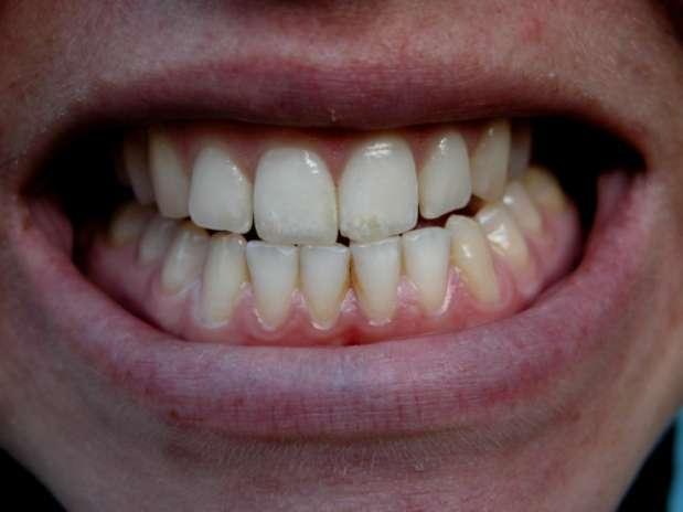 Muitas pessoas apertam e rangem os dentes enquanto dormem, um problema progressivo que pode desgastar e até mesmo amolecer os dentes. Foto: Shutterstock