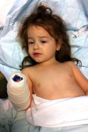 Amelia Lancaster sofre por causa de uma meningite em um hospital de Oxford, no Reino Unido. A menina surpreendeu médicos após se recuperar quando os médicos davam horas de vida para ela Foto: The Grosby Group