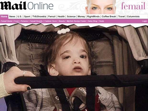 Apesar da idade, Brooke Greenberg mantém a aparência física e a cognição de uma criança Foto: Daily Mail/Reprodução
