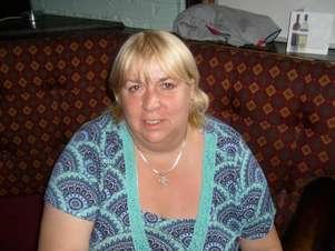 Antes da cirurgia, a dona de pub pesava 127 kg Foto: The Grosby Group